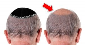 Noktara - Älterer Jude trägt Kippa, um kahle Stelle am Hinterkopf zu bedecken
